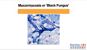 MUCORMYCOSIS